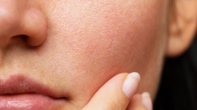Dry face skin: the causes and treatments to combat it