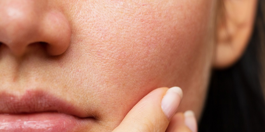 the cause of dry face skin